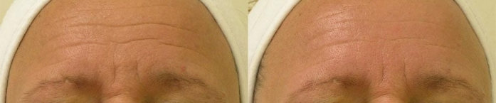 hydrafacial-before-after-3