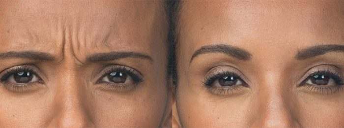 botox-before-after-ava